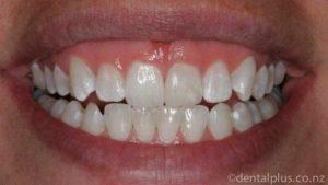 Teeth Whitening Dentist Tauranga