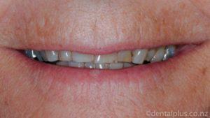 Smile Enhancement Treatment before