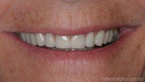 Smile Enhancement Treatment After