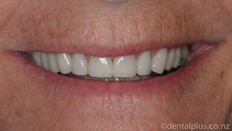 Smile Enhancement Treatment After