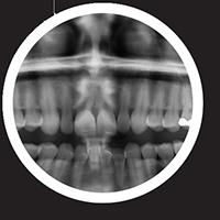 teeth diagnosis - Digital X-rays, DentalPlus