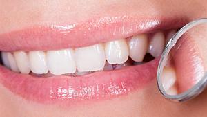 Ethical and pain-free dental care, DentalPlus Tauranga