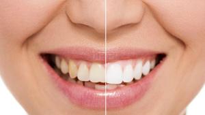 Dental Hygienists   Teeth Diagnosis & Prevention   Dental Plus Tauranga