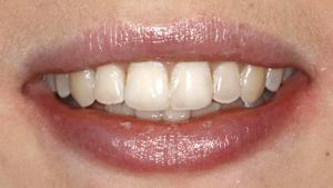 Six Month Braces, Orthodontics, DentalPlus Tauranga