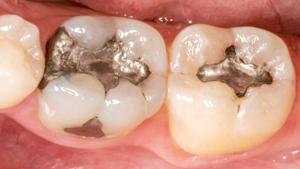 Ultratough Fillings, DentalPlus Tauranga