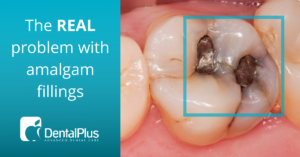 Blog The REAL problem with amalgam fillings
